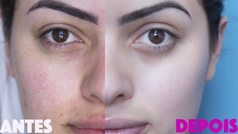 Antes e depois da Kim Cuca Rosa